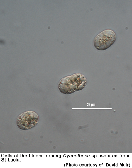 Cells of the bloom-forming Cyanothece sp. isolated from St Lucia (Photo courtesy of  David Muir).